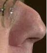 Nose2b